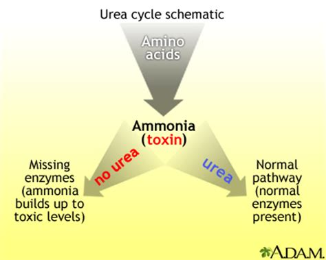 Does Detoxing Ammonia Means It Removes It From The Aqauarium by Hereditary Urea Cycle Abnormality