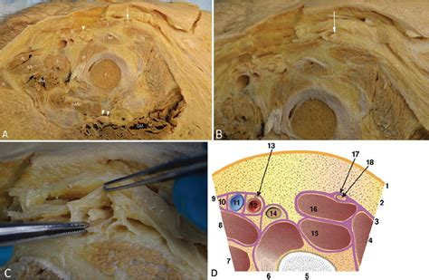 lateral femoral cutaneous nerve canal  journal  neurosurgery volume  issue