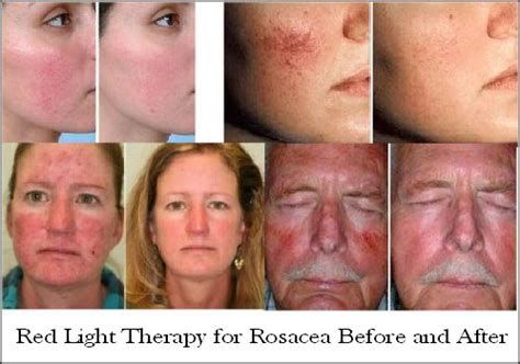 led light therapy before and after light therapy reduce wrinkles age spots acne more