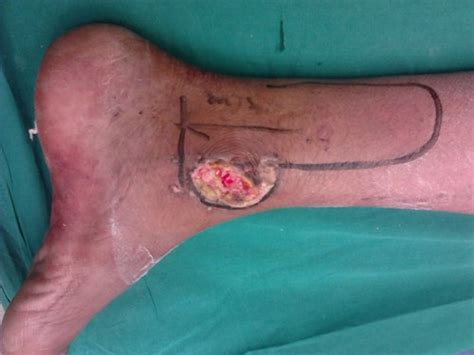 Vaccum Assisted Closure Wound Management