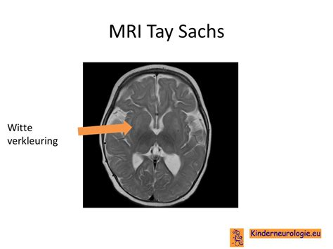 mri thesis topics tay sachs disease thesis statements countriessided cf