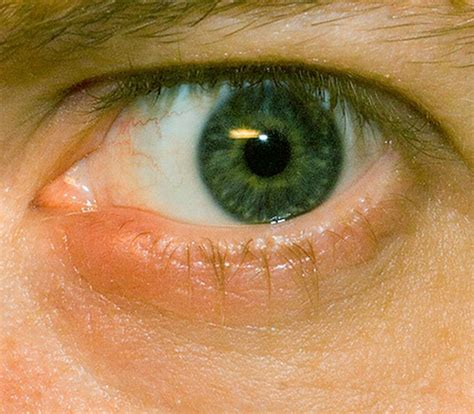 eye stye eye stye pictures