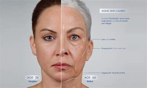 aging jaw line facial structure understanding how the face ages sf bay