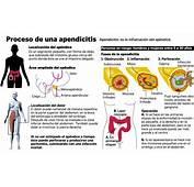 Causas Que Pueden Provocar Apendicitis  Blog De Farmacia