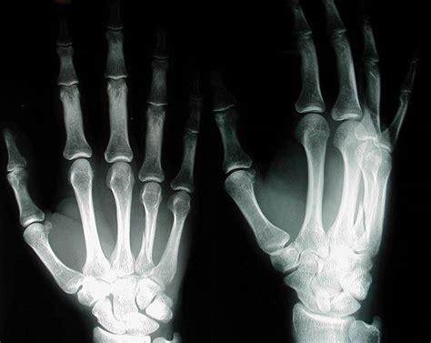 uso de los rayos x rayos x historia sobrehistoria com