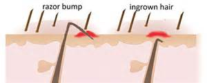 tweezing vs shaving pubic area for women razor bumps and ingrown hairs
