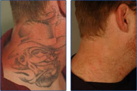 tattoo removal new zealand cost tattoo removal costs