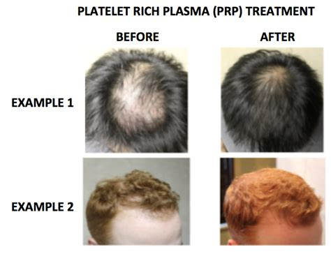 richdomyhair com platelet rich plasma prp for the treatment of genetic