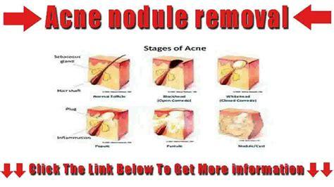 cystic acne diagram acne nodule removal