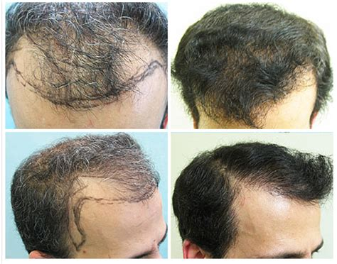 transplant hair from chest to head hairline transplantation with nape beard and chest hair