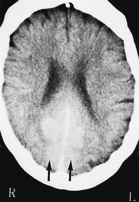 Transient cortical blindness related to coronary