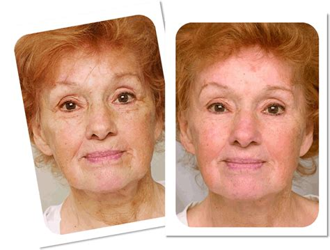 laser wrinkle removal before and after laser treatments ukbefore after laser anti wrinkle