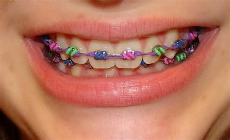 braces colors that make teeth whiter choosing color of braces how teeth look white with color