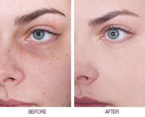 Acne Serum Zahra Skincare Pink