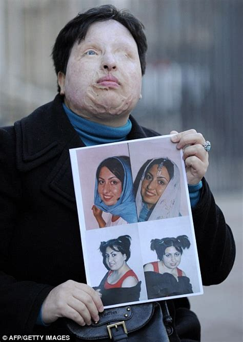 persian men in bed iranian woman ameneh bahrami blinded in acid attack names