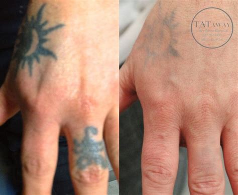 hand tattoo removal 100 removal before u0026 after