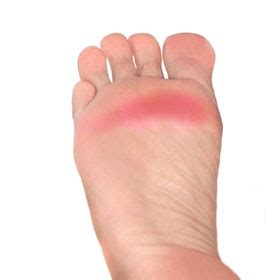 Piede Safety metatarsalgia treatment and prevention foot solutions