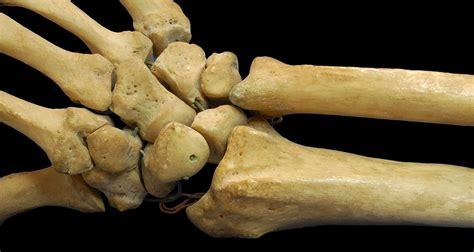 And Bone bone