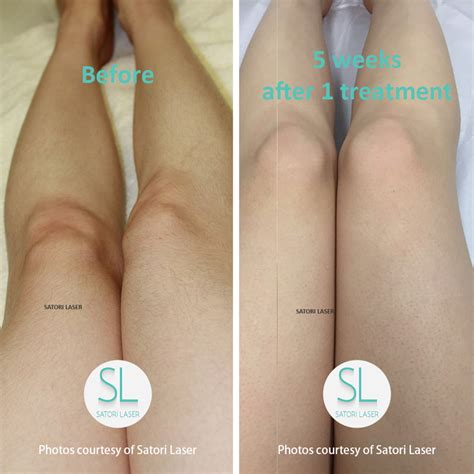 laser hair removal south jersey hairstyle gallery laser hair removal ct satori laser hair removal skin