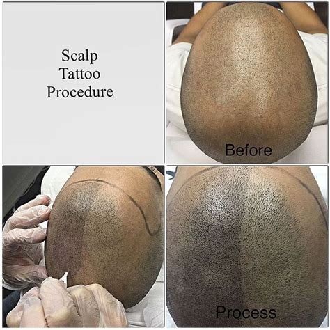 male pattern baldness tattoo 1050 best images about spa business on pinterest