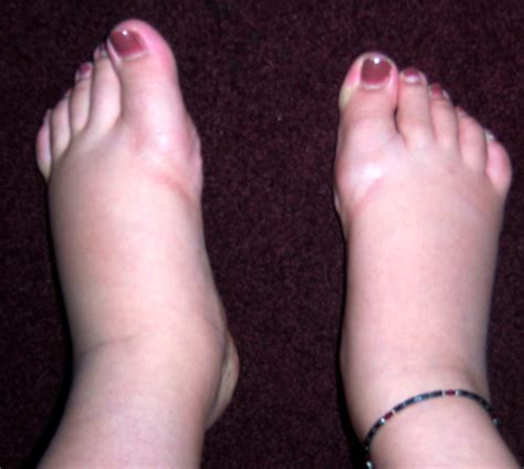 what to do for swollen feet after c section swollen feet causes symptoms treatment self remedy