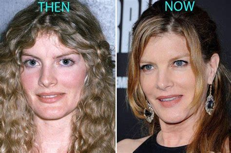 375 best images about celebrity plastic surgery on pinterest rene russo plastic surgery before and after photos