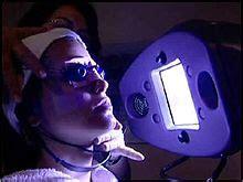 uv light for acne light therapy