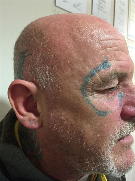 tattoo removal swansea wakes up from boozy stag to discover pair of