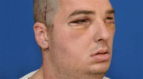 richard norris face transplant breakthroughs incredible images from a