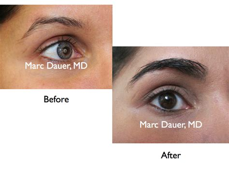 eyebrow transplant spiky hairs eyebrow transplant photos gallelry marc dauer md