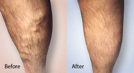 new spider vein treatment dr layke varicose vein removal nyc dr lev yelp