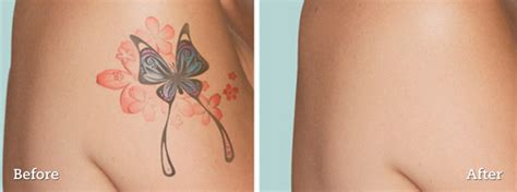 new tattoo removal laser tattoo removal derm ca derm ca