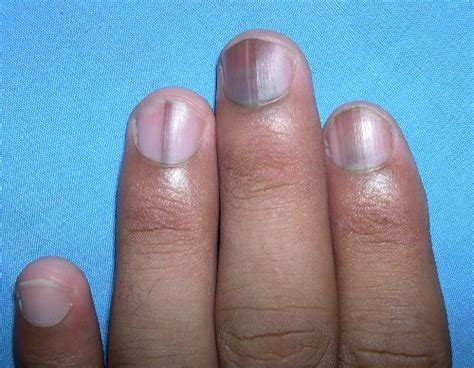 blue nail beds 10 diseases that show up in your nails