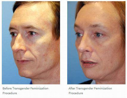 Facial Masculinization Surgery | transgender or facial feminization