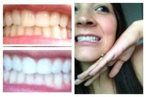 natural teeth whitener