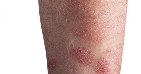 is pic psoriasis the skin what condition new psoriasis does b12 help psoriasis livestrong com