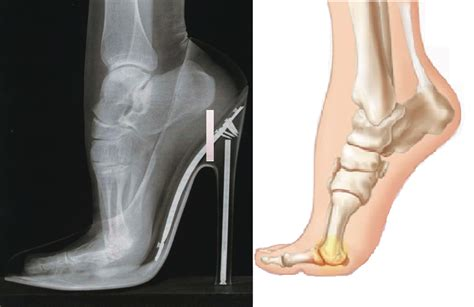 high heel foot scoliosis and high heeled shoes hudson valley scoliosis