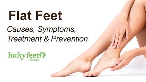 flat foot treatment shoes flat causes symptoms treatment prevention