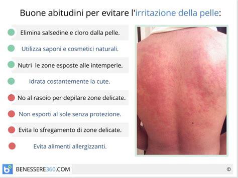 bruciore interno coscia pelle irritata ed arrossata cause e rimedi per l