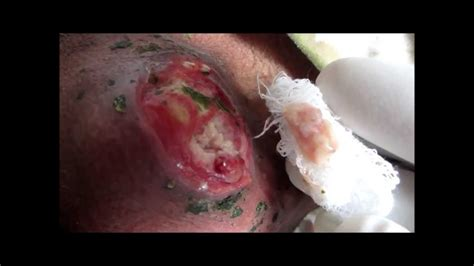 sebaceous cyst rupture inflammed ruptured sebaceous cyst on neck