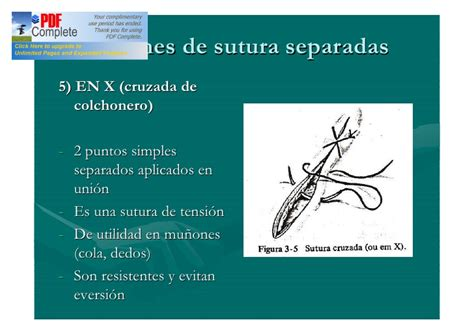 punti sutura interni suturas