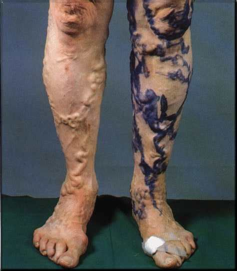 chronic venous disease of the legs is one of the most common