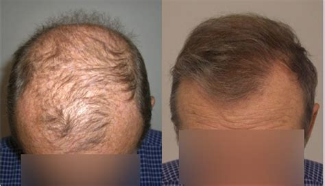 hair transplant orlando hair restoration orlando best before and after photos of hair transplant clients