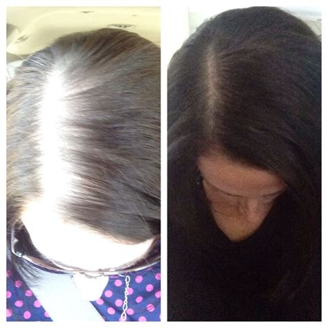 hairgrowth with cedarwood essential oil before and after pics essential oils for hair taken 2 and facebook on pinterest
