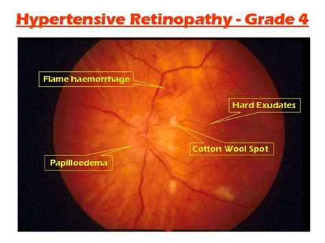 3 Retina Second hypertensive retinopathy vs diabetic retinopathy karenchantek s