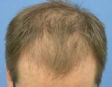 diffuse pattern hair loss diagnosing and treating diffuse patterned alopecia dpa