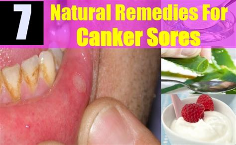 pics photos canker sore on tongue treatment home remedies