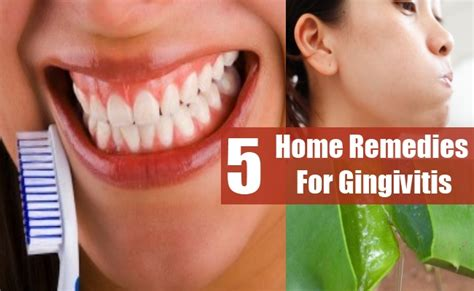 5 gingivitis home remedies treatments and cure