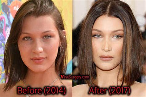 bella hadid before and after plastic surgery plastic bella hadid plastic surgery before after nose job pics