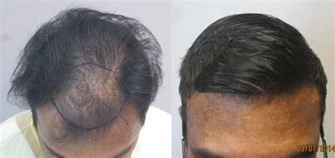 hair transplant cost 2014 hair transplant cost 2014 hair transplant cost in dubai